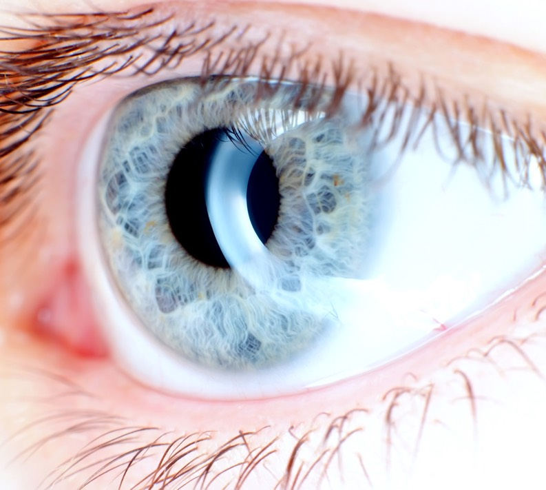 Lutein and zeaxanthin safeguard eyesight