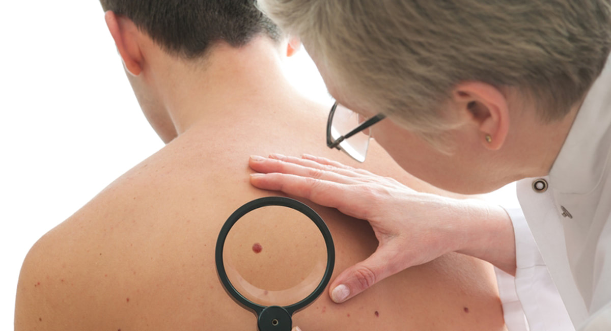 Estrogen plays a pivotal role in curbing melanoma