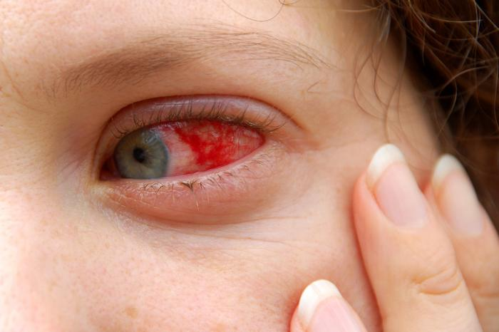 Eyesight is rarely affected in Pink Eye conjunctivitis
