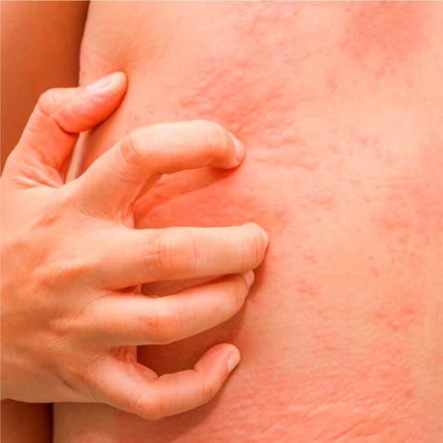 Itching & rashes disappear in a few days' time
