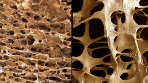 Lifestyle and eating habits too affect bone density